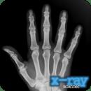 X-射线扫描仪 X-Ray Scanner