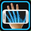 X射线扫描仪的笑话
