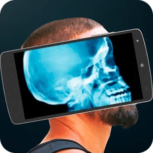 真正的X射线模拟器